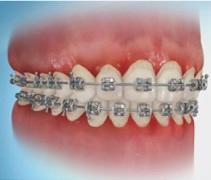 mal alinento ortodoncia invisible barcelona